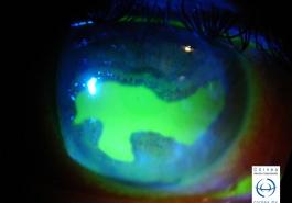 Úlcera corneal geográfica