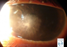 Úlcera corneal micótica