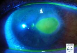Úlcera corneal teñida con fluoresceina