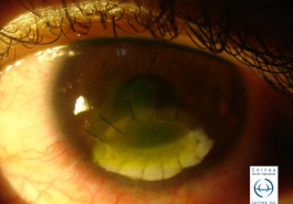 Perforación corneal - Parche esclero corneal