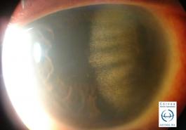 Depósitos de colesterol secundario a neovascularización corneal