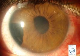 Dialisis de iris postraumatica con edema corneal