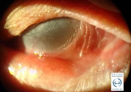 Epidermalización-de-la-superficie-ocular-en-penfigoide-ocular