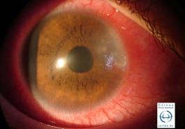 Esclero queratitis