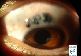 Escleromalasia perforans