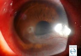 Flictenulosis corneal