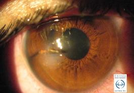 Herida corneal penetrante por cuerpo extraño metálico