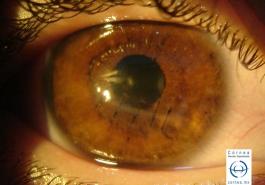 Herida corneal suturada