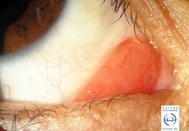 Hiperplasia linfoidea reactiva