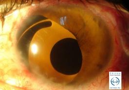 Lente intraocular con protesis de iris