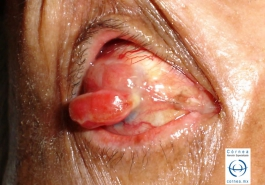 Melanoma de córnea