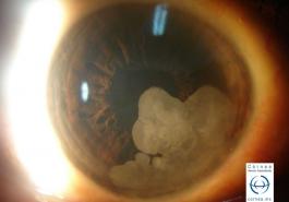 Neoplasia Intraepitelial vista con iluminación