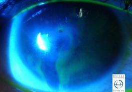 Perforación corneal con salida de humor acuoso seidel