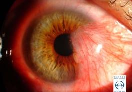 Pterigión nasal que cubre parte del eje visual
