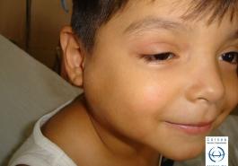 Sindrome oculo glandular de Parinaud