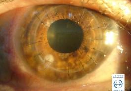 Trasplante de córnea - Sutura floja e infectada