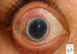 Trasplante esclero corneal