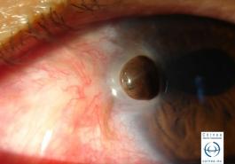 Perforación corneal con exposición de iris después de cirugía de pterigión
