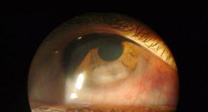 DM2_2_cornea