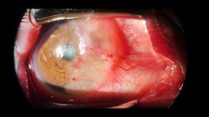 Tumores de la superficie ocular_2_cornea