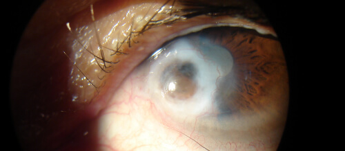 enfsistemicas_cornea