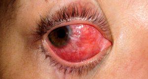 escleritis_11_cornea